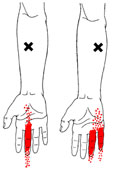 Trigger points cause finger pain