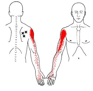 Muscle That Causes Hand and Arm Pain