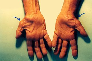 320px-Untreated_Carpal_Tunnel_Syndrome